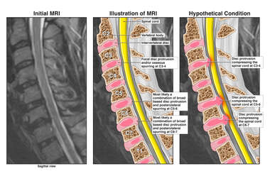 Multilevel Cervical Spondylosis Without and With Spinal Cord Compression