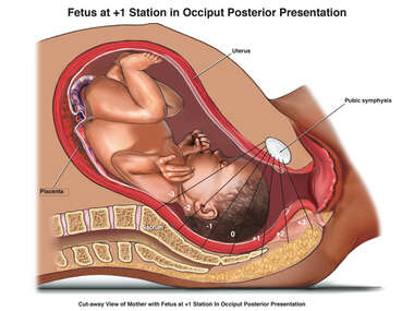 Fetus at +1 Station in Occiput Posterior Presentation
