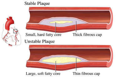 Plaque in an Artery: Stable and Unstable
