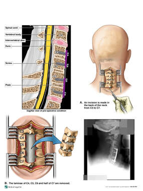 Continued Cervical Spine Stenosis with Posterior Decompression
