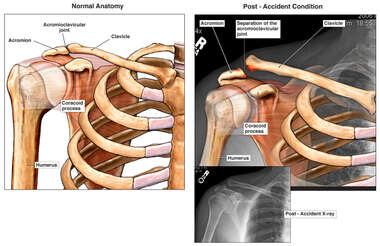 Right Shoulder Injury