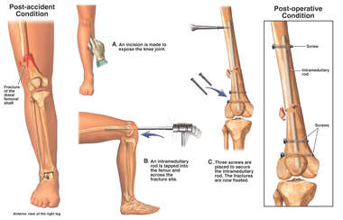 Distal Femur Fractures with Surgical Fixation