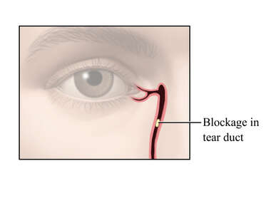 Blockage of the Tear Duct