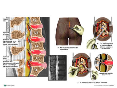 Lumbar Disc Herniation with Surgical L5 Laminectomy and L5-S1 Discectomy