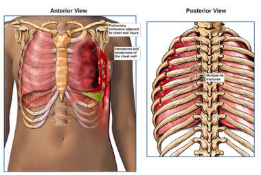 Female Torso with Post-accident Chest Injuries - Front and Back