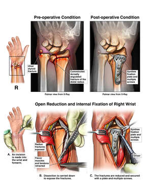Right Wrist Injuries and Surgery