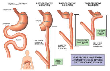Progression of Roux-en-y Gastrojejunostomy
