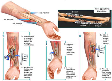 Surgical Fixation of the Left Forearm Fractures