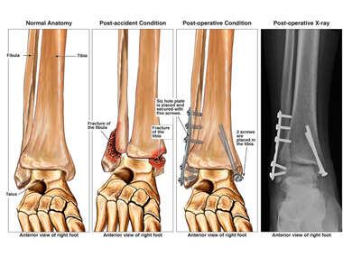 Bimalleolar Ankle Fracture with Subsequent Surgical Fixation with Plate and Screws