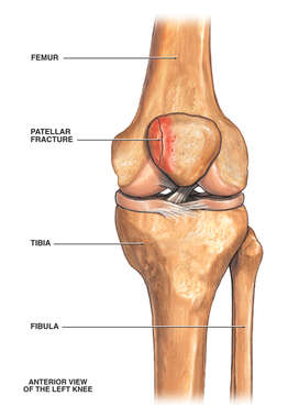 Post-accident Knee Injury