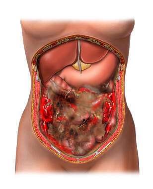 Perforated Bowel with Resulting Sepsis