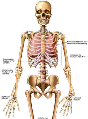 Skeletal Figure with Post-accident Injuries to the Thorax, Spine, and Wrists Bilaterally