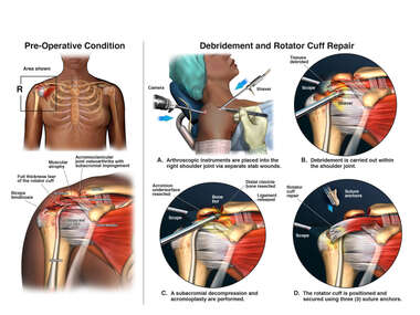 Right Shoulder Injuries and Arthroscopic Surgery