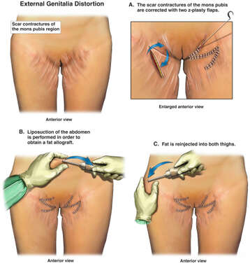 Scar Contractures of the Mons Pubis with Surgical Repairs