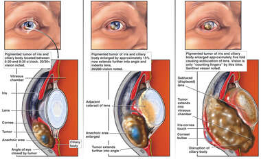 Progression of Right Eye Tumor