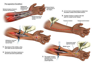 Left Forearm Contractures with Surgical Repairs