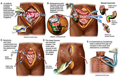 Exploratory Abdominal Laparotomy with Multiple Procedures
