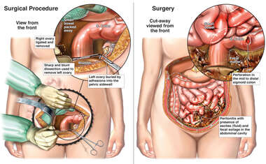 Bilateral Salpingo-oophorectomy with Perforation of the Colon