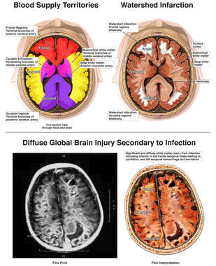 Watershed Infarction vs. Profound Brain Injury Secondary to Infection