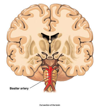 Anatomic Relationships of the Brain and Basilar Artery