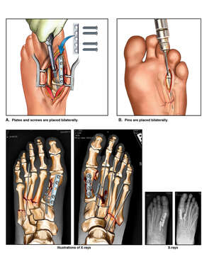 Surgical Fixation of Multiple Fracture-dislocations to Bilateral Feet