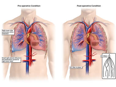 Pulmonary Artery Embolism and Placement of IVC Filter