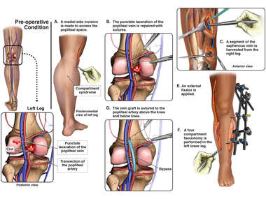 Left Leg Injuries with Surgical Procedures