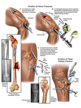 Traumatic Injuries of the Left Leg with Surgical Repairs