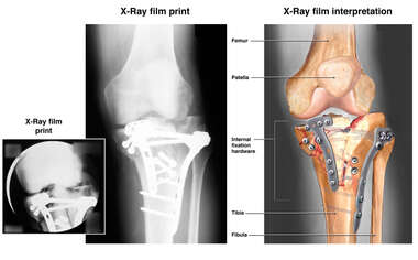 Post-operative Plate and Screw Fixation of the Left Knee