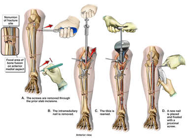 Right Tibial Nonunion with Rod Exchange