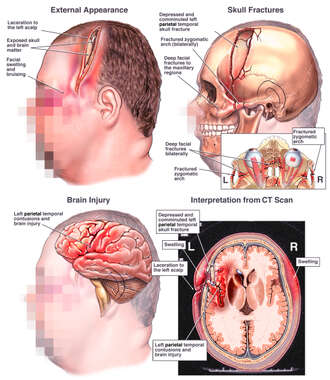 Male  with Post-accident Head and Brain Injuries