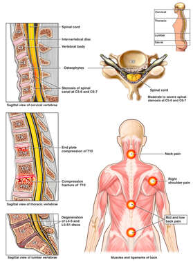 Multilevel Post-accident Neck and Back Injuries with Pain Diagram
