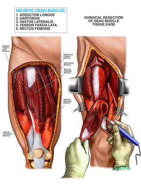 Surgical Resection of Dead Muscle in the Thigh