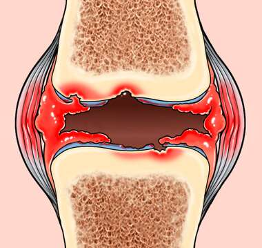 Synovial Joint with Severe Inflammation