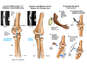Proposed Osteotomy to Correct Right Arm Elbow Deformity