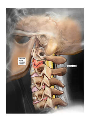 Pre-operative Condition of Cervical Spine