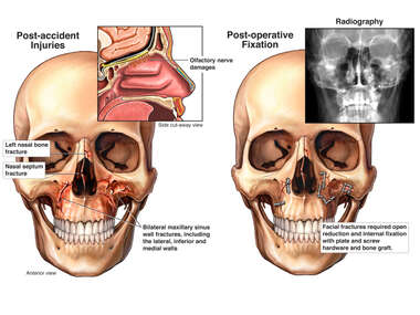 Post-accident Facial Fractures with Surgical Fixation
