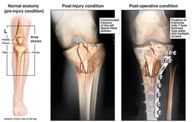 Comminuted Left Tibial Plateau Fracture with Surgical Fixation