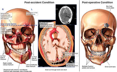 Post-accident Head and Brian Injuries with Surgical Fixation of Fractures