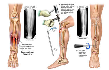 Left Open Tibia-Fibula Fractures with Surgical Fixation