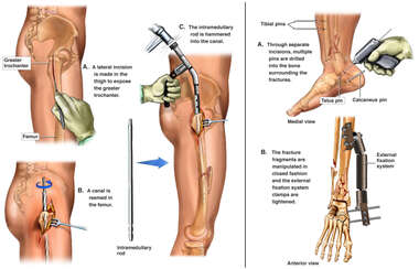 Surgical Repairs of the Right Leg