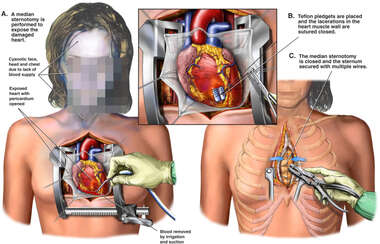 Median Sternotomy with Repair of Cardiac Lacerations