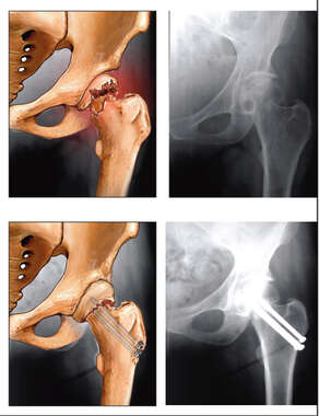 Femoral Head Fracture