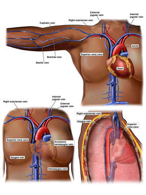 Venous Anatomy of the Chest and Right Arm