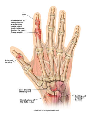 Post-accident Hand and Wrist Injuries
