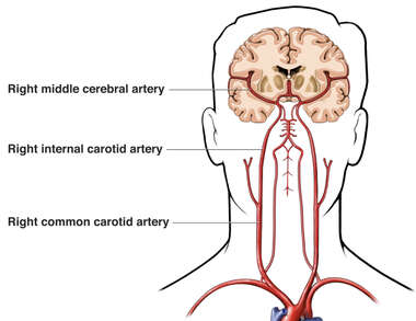 Blood Supply To the Brain (Normal Anatomy)