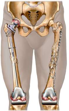 Reconstructed Lower Extremities