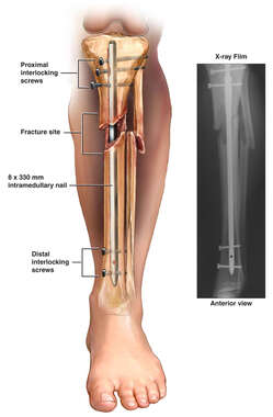 Tibial fixation with intramedullary rod