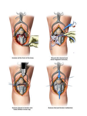 Right Knee Surgery