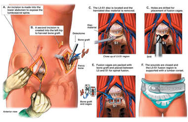 Anterior Discectomy and Fusion of the Lumbar Spine